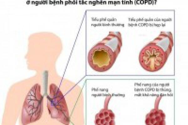 Bài thuốc quý từ thảo dược cho người bị hen suyễn, COPD